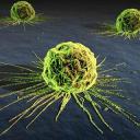 Rakovina varlete