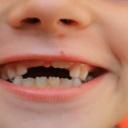 Příprava dítě na první zubní vyšetření
