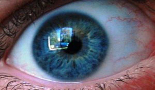 oči, dětské oční vady, vyšetření očí u dětí