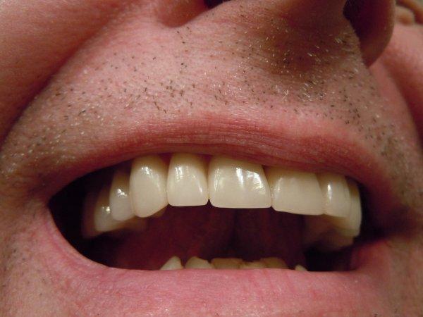 parodontitida, zánět dásní, stomatolog, zdraví