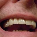 Vyšetření na parodontitidu by mělo být součástí preventivní stomatologické prohlídky