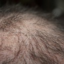Zatočte z alopecií neboli ztrátou vlasů